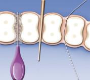 professionelle Zahnreinigung, Fissurenversiegelung