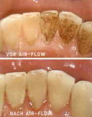 Zahnreinigung, Zahnarztpraxis Hesebeck