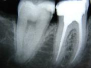 Ultraschallverfahren, Endodontie, Zahnarzt Hesebeck