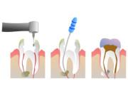 Endodontie, Wurzelbehandlung