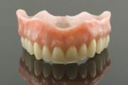 herausnehmbarer Zahnersatz, Leistungen Zahnarzt Hesebeck