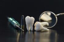 Zahnimplatate, Beratung Implantate, Zahnarzt Hesebeck